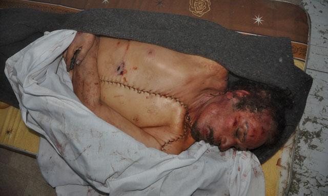 El cadáver de Gadafi, exhibido. VEA TODAS LAS IMÁGENES