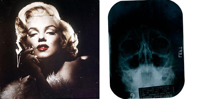 La actriz, y una radiografía facial. | Gtres/Julien's Auctions via Reuters [VEA LAS IMÁGENES]