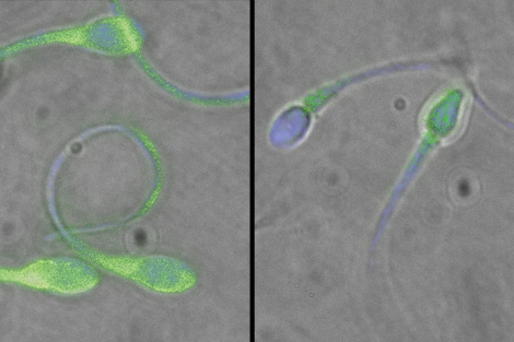A la dcha, esperma normal y a la izq. con mutaciones