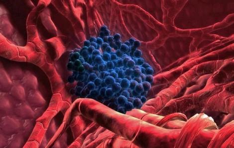 Células tumorales en un hígado humano. | El Mundo