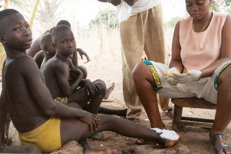 Afectados por dracunculiasis en Togo | Foto: CDC