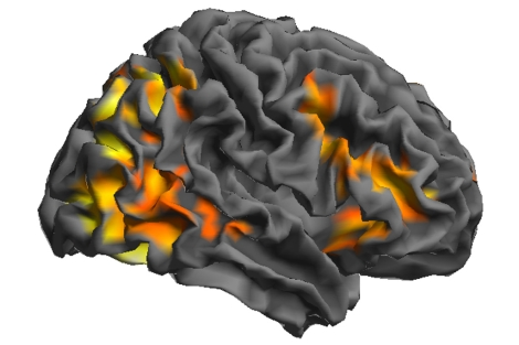 ¿Puede un escáner cerebral detectar la pedofilia?  1328556121_0