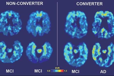 Pruebas de imagen que muestran el avance del deterioro cognitivo. | UCLA
