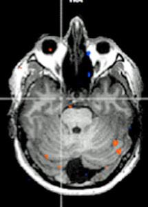 Activación del cerebro ante los olores en una persona con anosmia (amplíe para compararla con una persona sin este problema).| Fundación CIEN