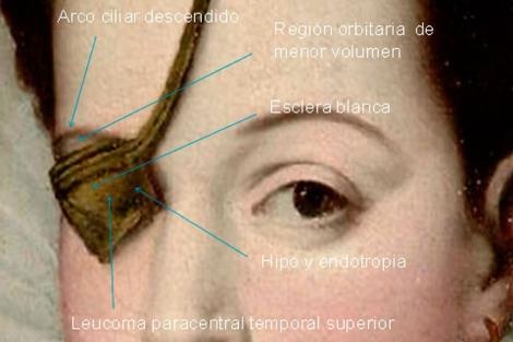 http://estaticos04.cache.el-mundo.net/elmundosalud/imagenes/2012/04/20/noticias/1334939068_0.jpg