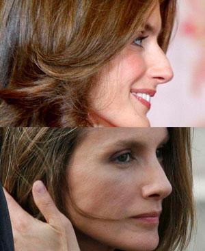 Letizia antes y después de someterse a la intervención en su nariz.